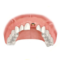 Seating the implant